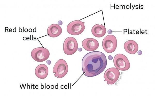 Hemolitička kriza - organizam napada i razara sopstvene eritrocite i dolazi do hemolize